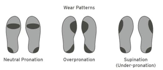 Wear Pattern
